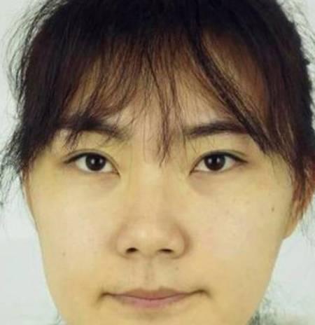 夏有森光暖无疑的鼻综合整形术前照