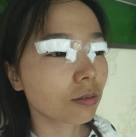 找成都天使之翼张劲松做开外眼角手术后