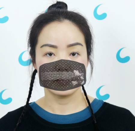 给大家分享我在成都大华医院找杨玉明眉毛种植,15天恢复效果
