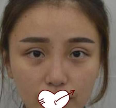 幻听的假体隆鼻修复术前照