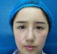 给大家分享一下成都鹏爱悦己赵普阳为我做的线雕隆鼻,60天恢复效果分享