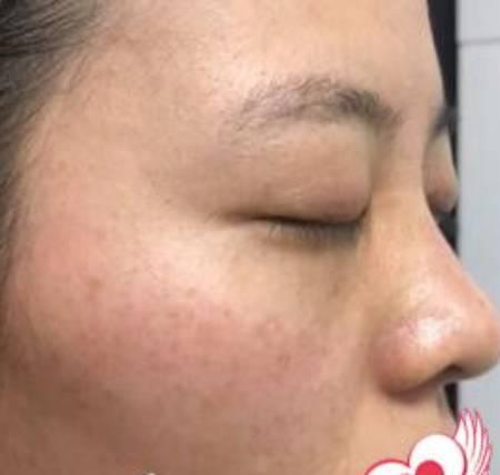 木梨花开的激光祛斑术前照