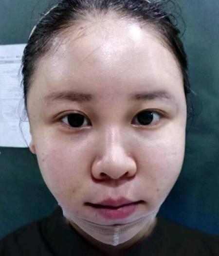 华人医联整形医院李焰给我做的磨下颌角手术后20天