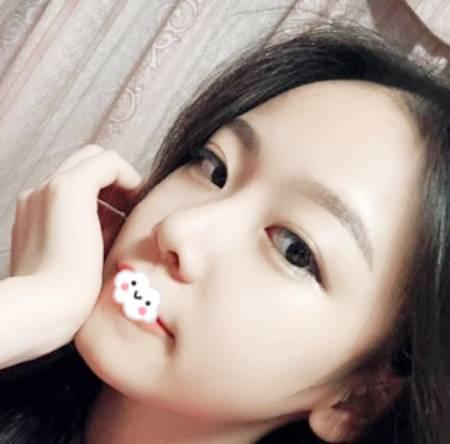 在重庆铜雀台找伍森林做鼻综合隆鼻手术后30天