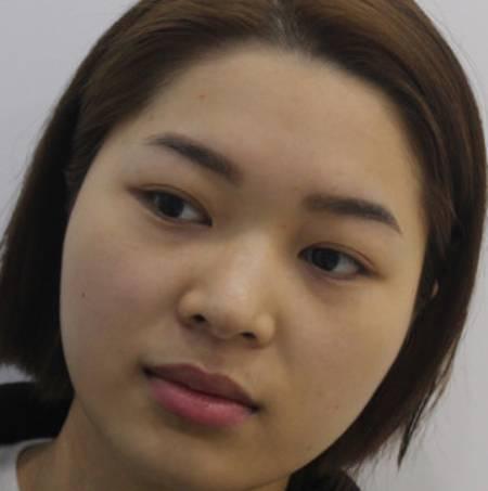 重庆铜雀台伍森林为我做的光纤溶脂瘦脸手术前