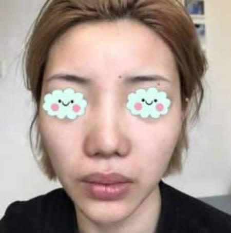 诗雨伊意的假体隆鼻修复术前照