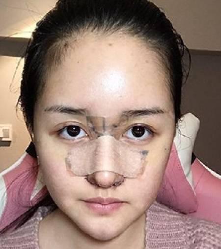 找张家建医生做的鼻综合整形手术前