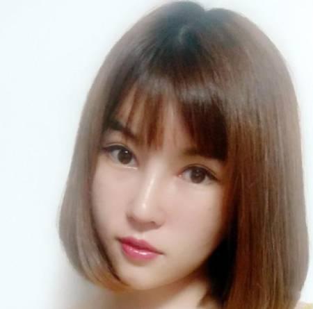 在四川省人民医院整形外科做完自体肋软骨隆鼻手术后