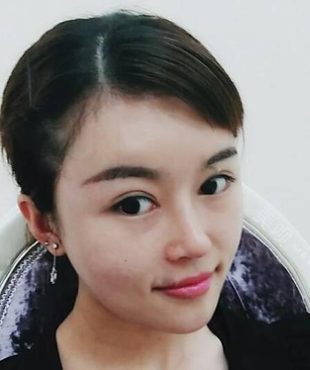 在四川省人民医院整形外科做完自体肋软骨隆鼻手术后65天