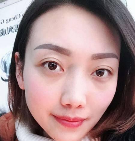 在四川省人民医院整形外科做外切去眼袋手术后30天