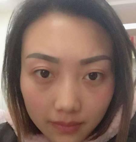 在四川省人民医院整形外科做外切去眼袋手术后45天