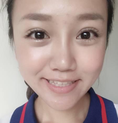 在四川省人民医院整形外科做的开内眼角手术后15天