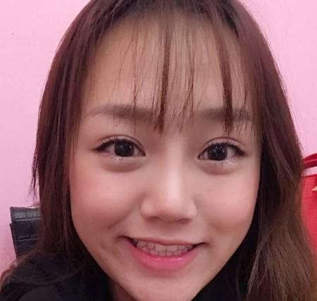 在四川省人民医院整形外科做的开内眼角手术后2个月