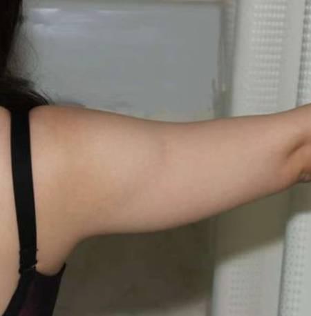 淡淡酒香的吸脂瘦手臂术前照