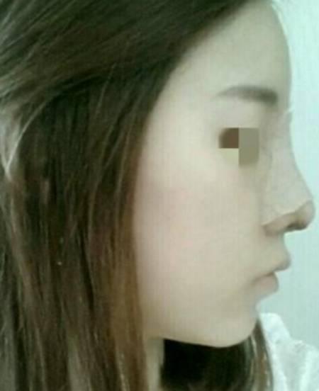 找王春敏医生做的鹰钩鼻矫正手术后3天