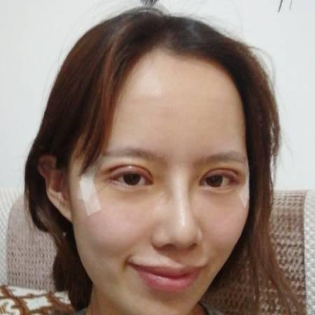 在成都美熹整容医院做眼综合整形手术后7天