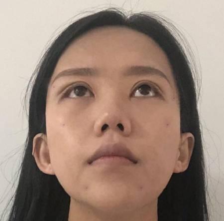 去成都蜀尚蓉雅找范瓅月做了埋线提升手术后8天