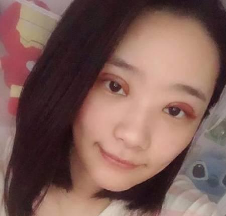 找朱永光医生做全切双眼皮手术后2天