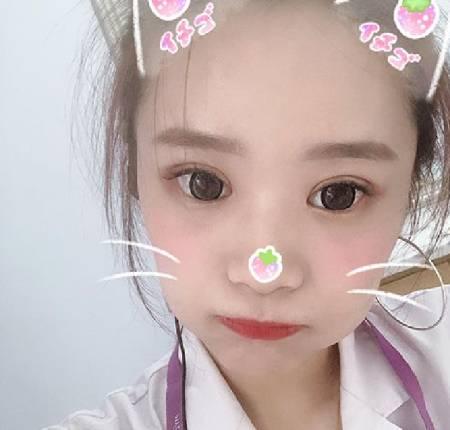 找朱永光医生做全切双眼皮手术后60天