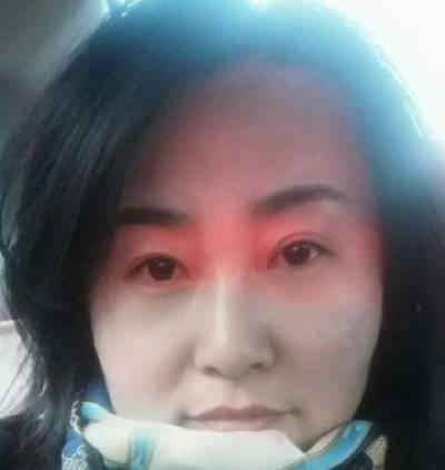 找成都蜀尚蓉雅的马欢做了射频紧致提升手术后30天