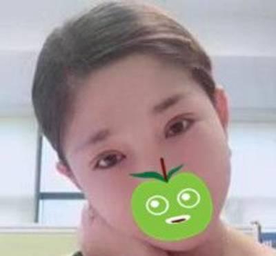 找成都魅丽经纬张京伟做双眼皮修复手术后15天