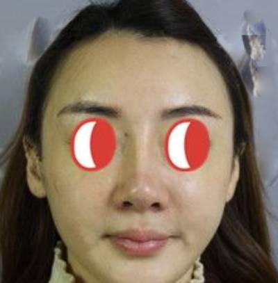 只为伊人笑的假体隆鼻修复术前照