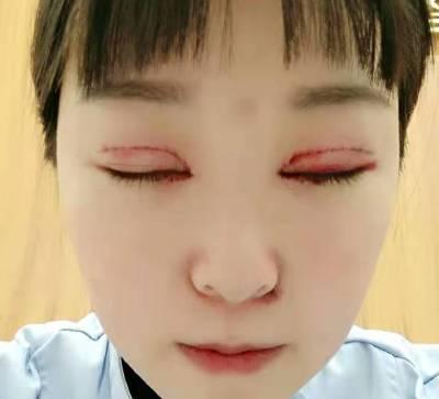 在成都艺美汇美容医院做全切双眼皮手术后