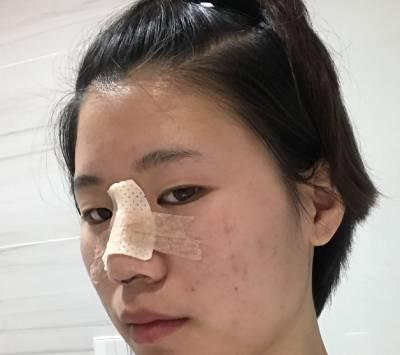找成都昆贝拉美容医院的王平远做自体耳软骨隆鼻手术后
