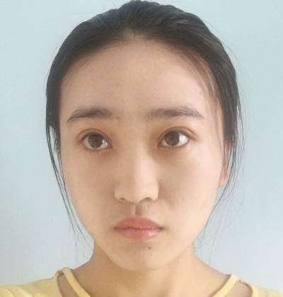 去成都昆贝拉美容医院做了眼综合整形手术后30天
