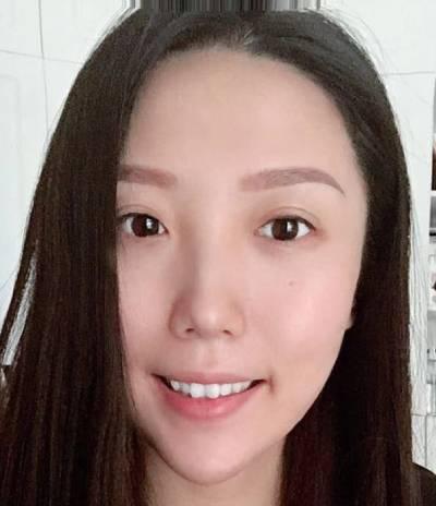 找成都医大的李辉医生做了手术去露龈笑术后35天
