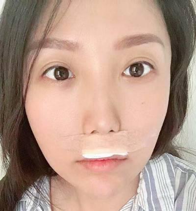 找成都医大的李辉医生做了手术去露龈笑术后