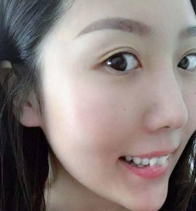 找成都医大的李辉医生做了手术去露龈笑术后7天