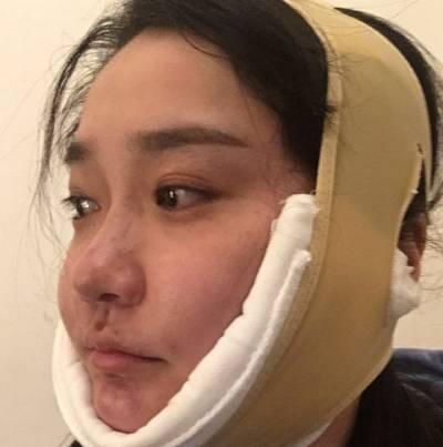 在成都医大整形美容医院做了吸脂去双下巴手术后第2天