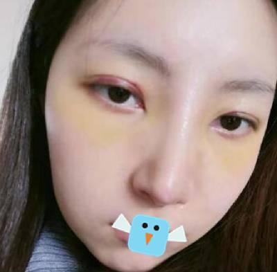 成都医大整形美容医院的虞冬梅给我做的鼻综合整形手术后