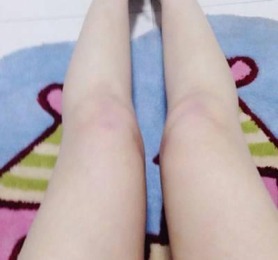 陈华生医生为我做的吸脂瘦大腿手术后40天