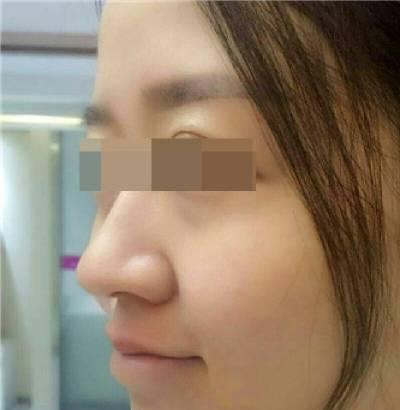 在成都市第二人民整形医院做了激光去红血丝手术后30天