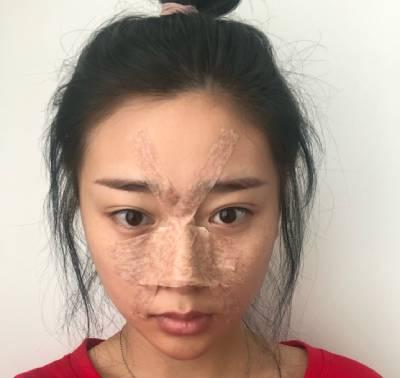 在成都艾美薇医疗美容医院做了硅胶假体隆鼻术后1天