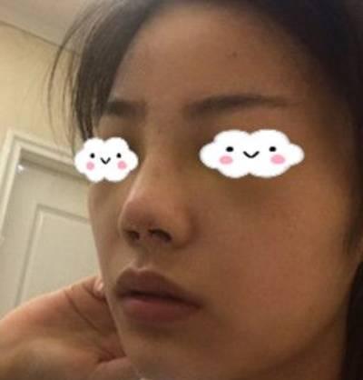 在成都美莱医院做自体耳软骨隆鼻手术后8天