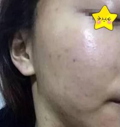 在广州市佳人医疗美容门诊部做点阵激光祛痘手术后10天