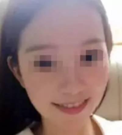 在广州市佳人医疗美容门诊部做点阵激光祛痘手术后40天