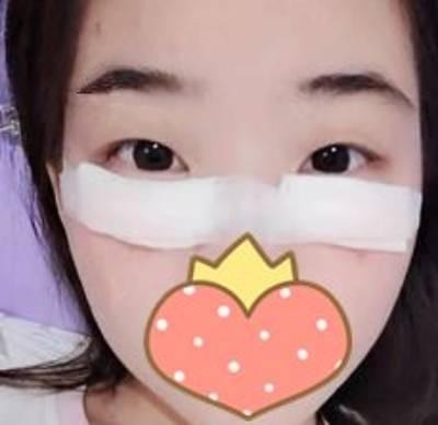 到广州市佳人医疗美容门诊部做玻尿酸填泪沟手术后7天