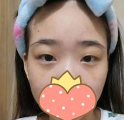 到广州市佳人医疗美容门诊部做玻尿酸填泪沟手术后40天