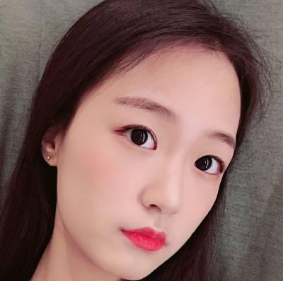 找广州中科美的孙中生做假体隆鼻手术后30天