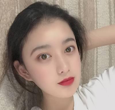 在广州中科美找郑志敏院长做全切双眼皮手术后18天