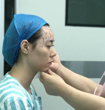 在广州韩妃医学美容医院做了自体脂肪面部填充手术前