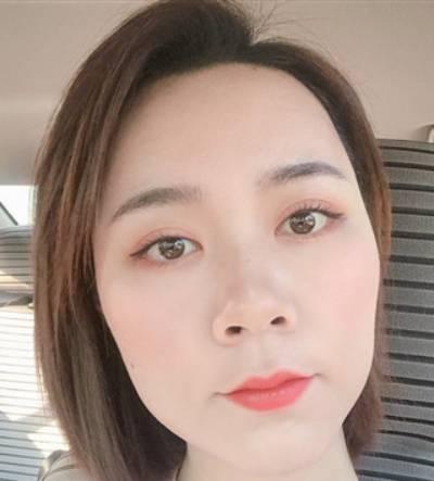 在广州韩妃医学美容医院做了自体脂肪面部填充手术后7天