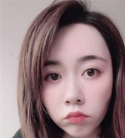 在广州韩妃医学美容医院做了自体脂肪面部填充手术后15天