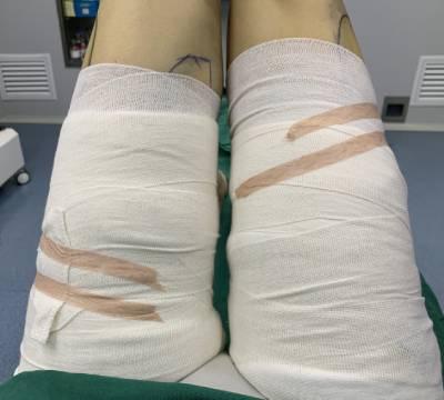 在广州韩妃医学美容医院做吸脂瘦大腿手术后7天
