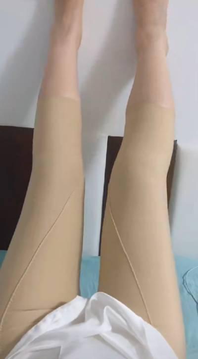 在广州韩妃医学美容医院做吸脂瘦大腿手术后15天
