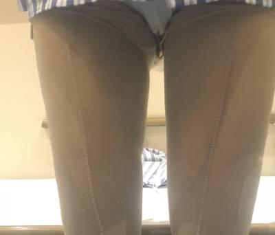 在广州韩妃医学美容医院做吸脂瘦大腿手术后